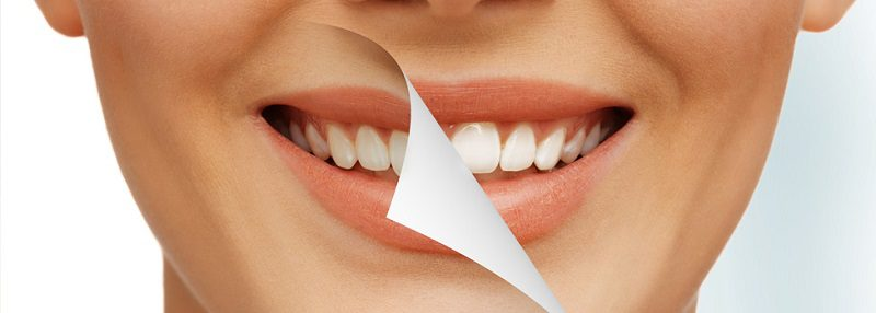 Modern Cosmetic Dentistry
