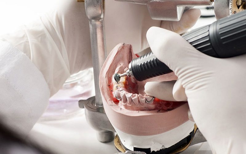 Learn More About a Dental Laboratory and What it Does