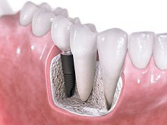 What is Involved With A Dental Implant Placement