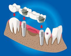 A Single Tooth May Cause Gum Disease