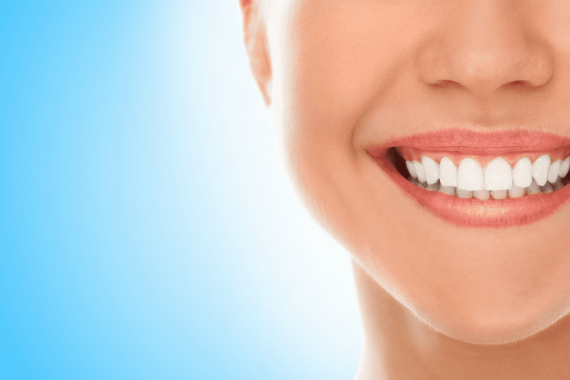 Know the Pros and Cons of Teeth Whitening