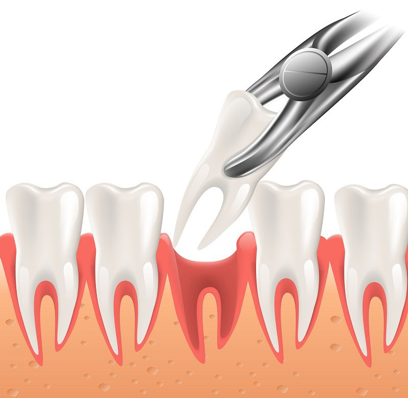 Extracting Wisdom Teeth May Prevent Future Problems