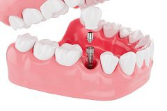 Take Full Advantages of All The Dental Implants